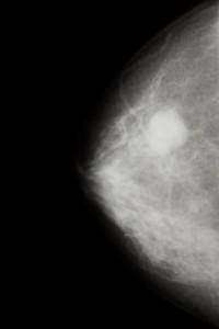 Sehr häufig geht Brustkrebs von Zellen der Milchgänge aus.