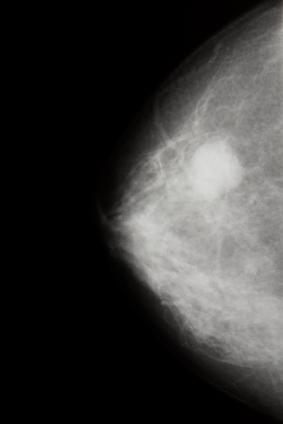 feststellen von brustkrebs