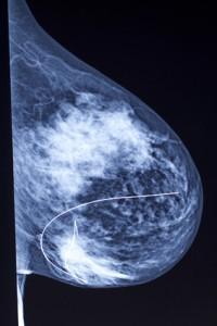 Mammographien werden zur Brustkrebsdiagnose durchgeführt.